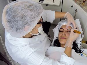 O pigmentary nota na pele em uma zona de biquíni