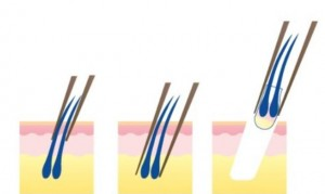 implante de sobrancelha